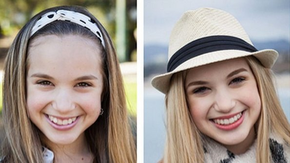 invisalign-teen-before-after-01.jpg