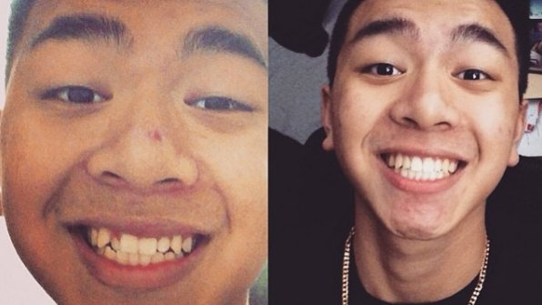 invisalign-teen-before-after-04.jpg