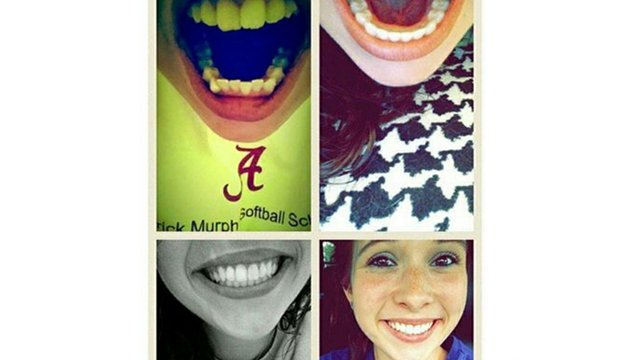invisalign-teen-before-after-05.jpg