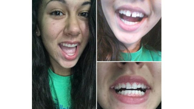 invisalign-teen-before-after-06.jpg