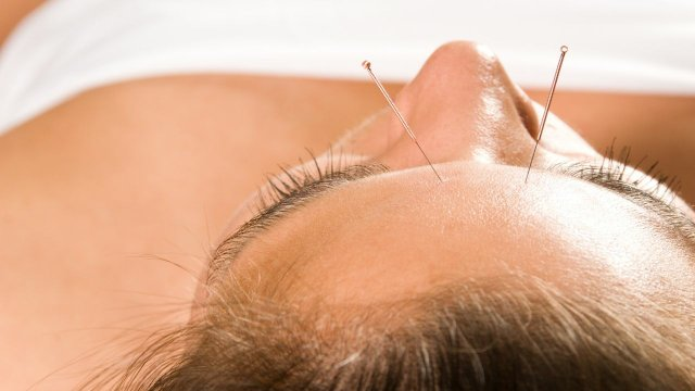 Acupuncture facial treatment