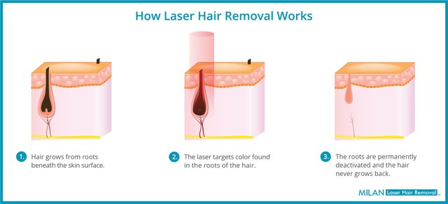 Milan Laser Hair Removal - 3 Stages